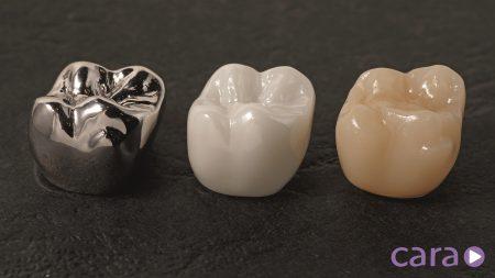 image-cara-crowns-1500